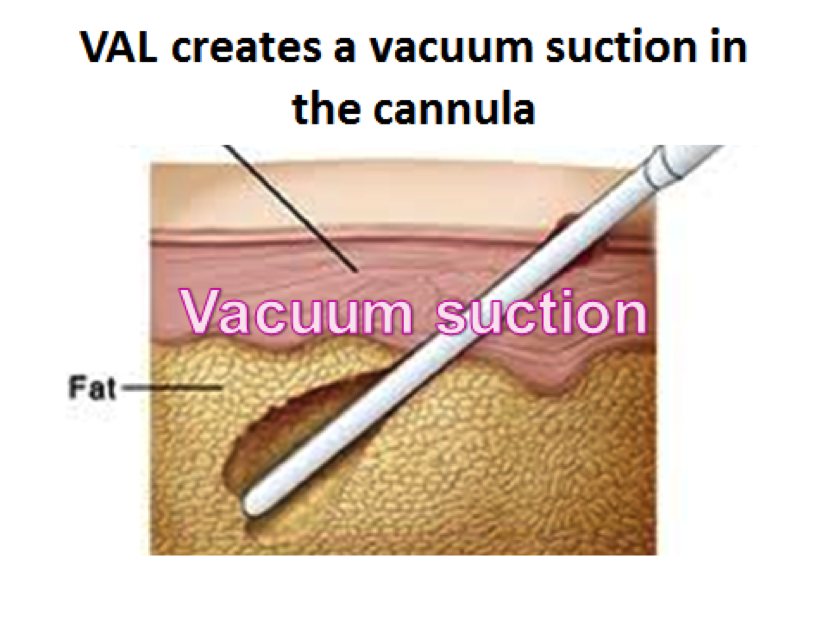 Vacuum Assisted Liposuction